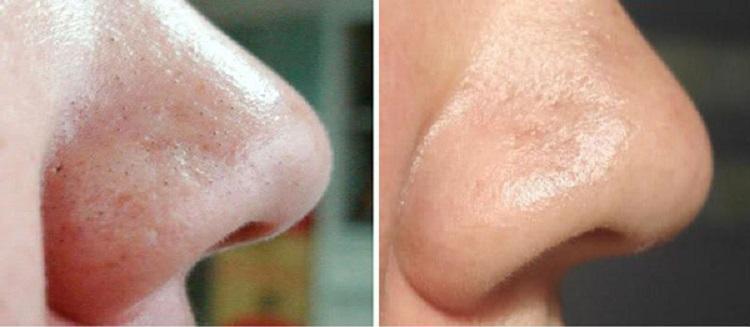 Чистка лица: До и После