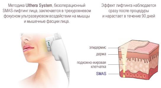 Безоперационный SMAS-лифтинг (Ulthera System)